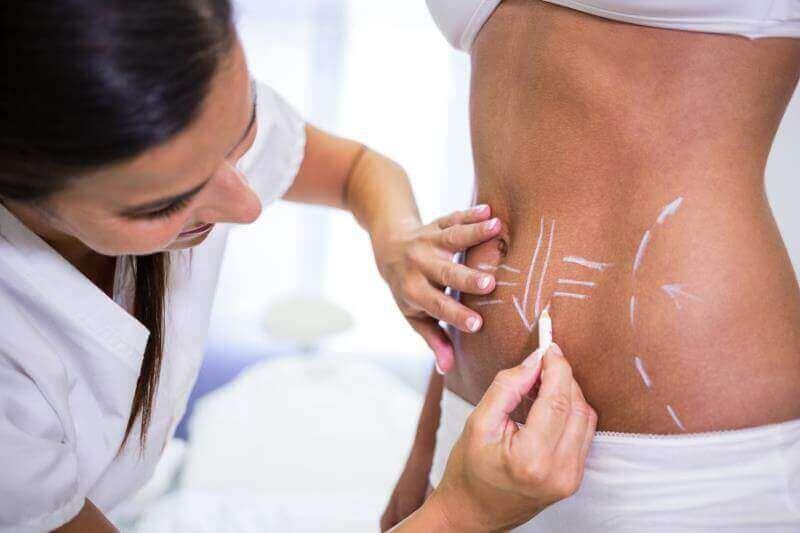 Minimum Karın Germe Ameliyatı Fiyatları izmir