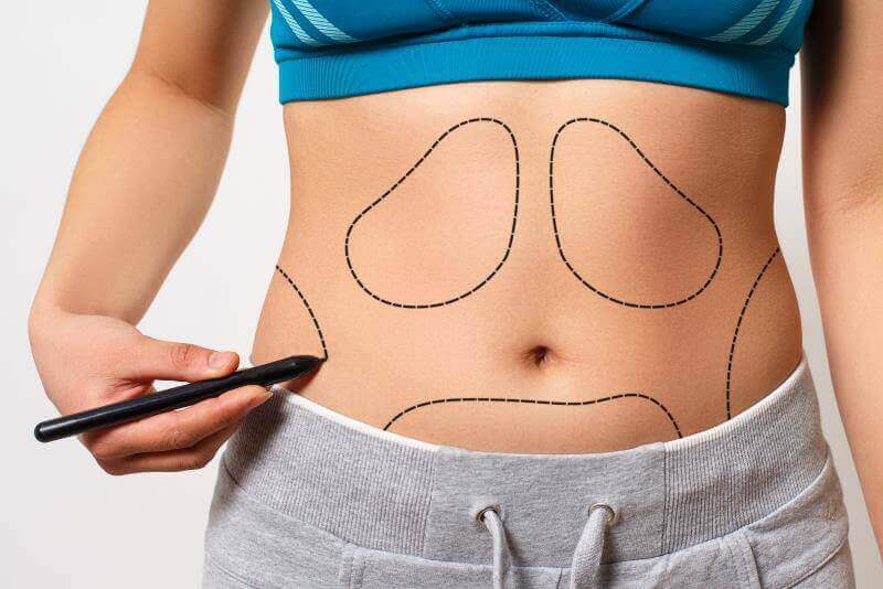 İzmir Lipomatik Liposuction Fiyatları izmir